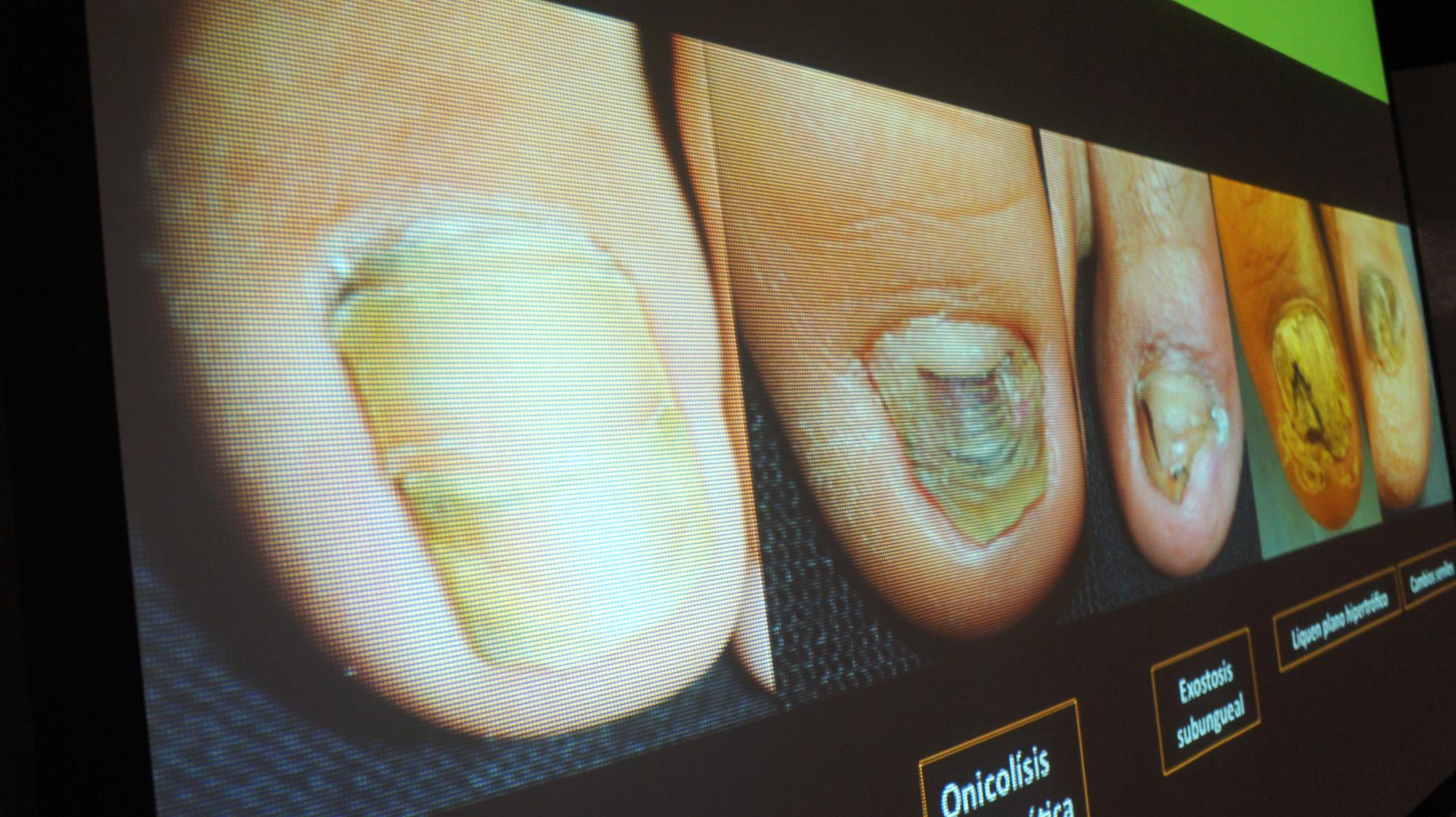 Pueden infecciones de hongos en las uñas confundirse con cáncer | En ...
